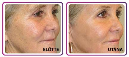 Ránctalanító krémet használunk, amely megfelelően védi a bőrünket